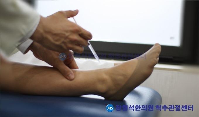 [발목염좌] 발목염좌 원인과 증상, 치료법